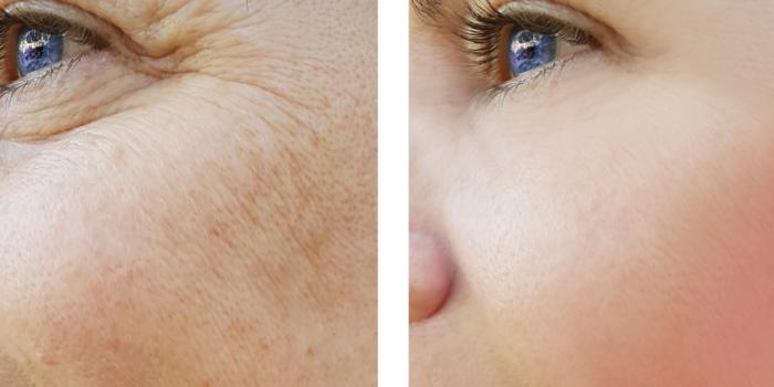 anti-aging zrele kože