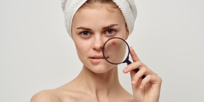 skin rescue tretman